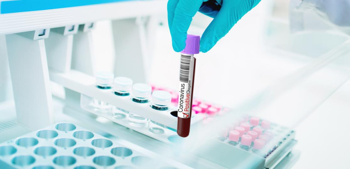 blood sample testing positive for covid